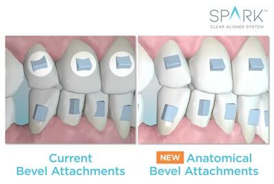 Bevel Attachments